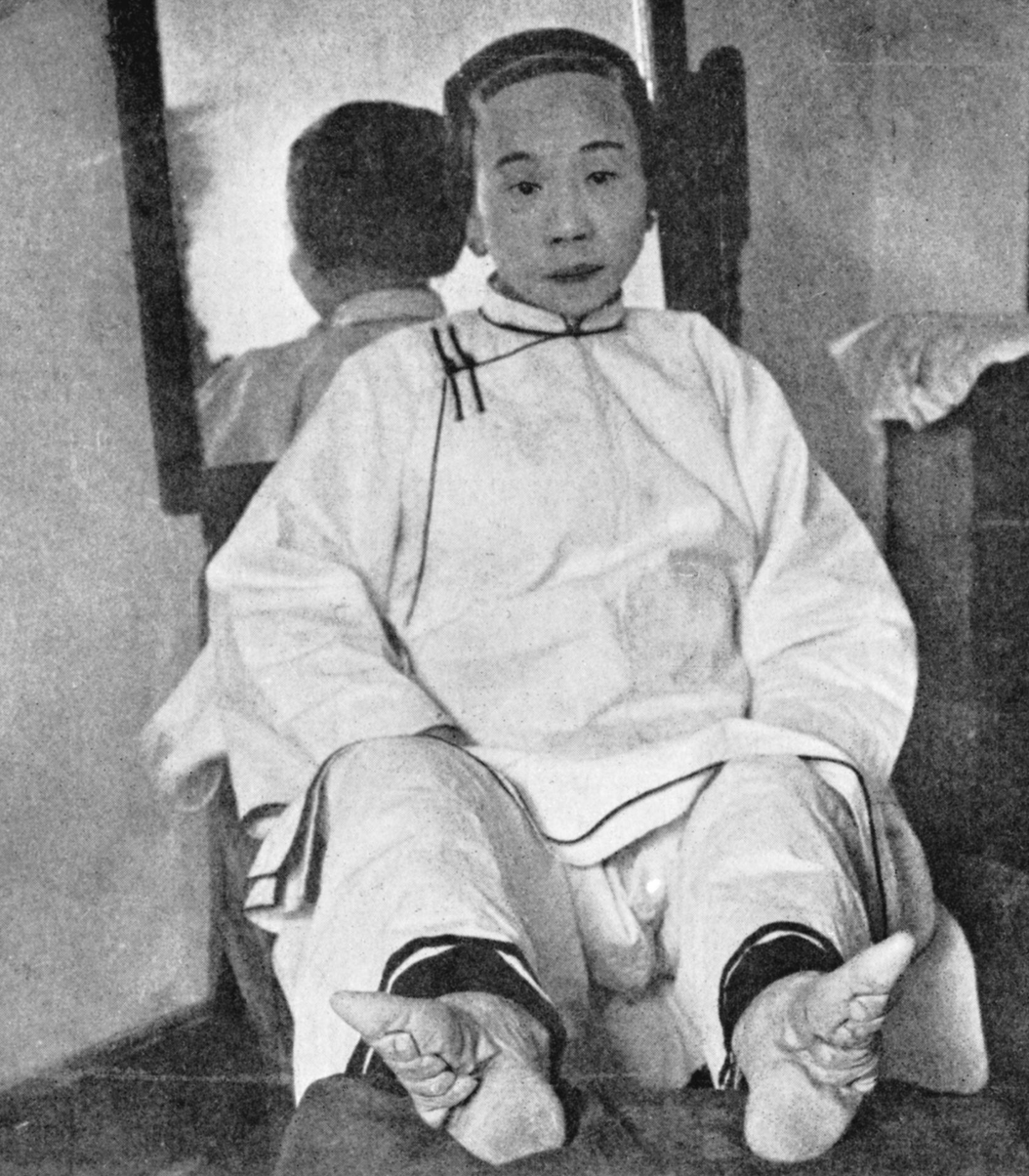 footbinding domination or choice essay Although no definite reason or person has been identified as responsible for the birth of footbinding, there are a few theories one deals with the shang.