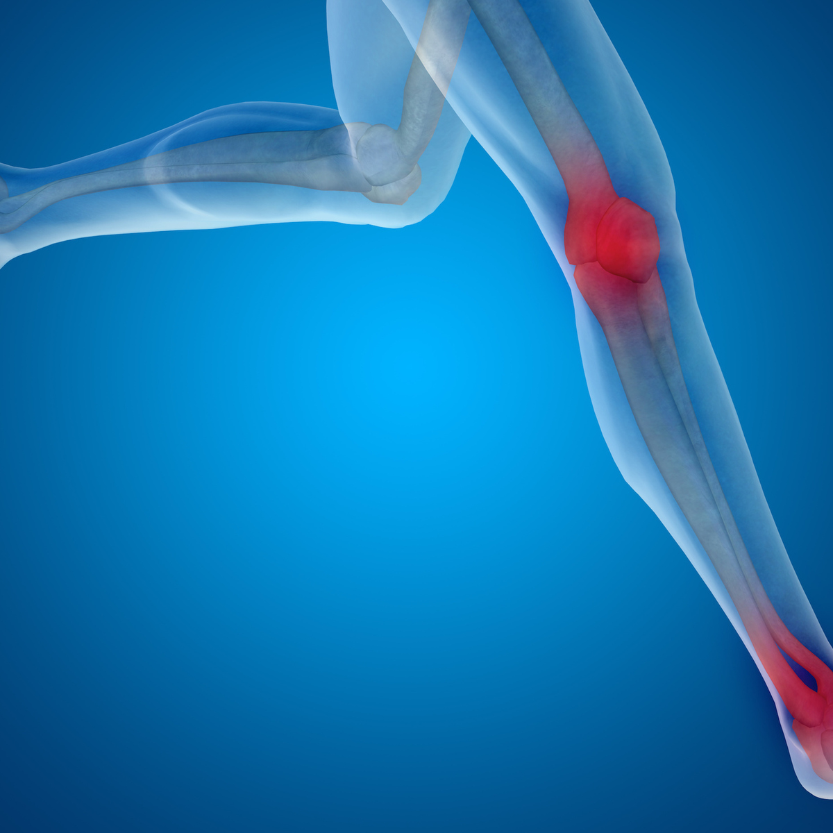 A Review of Rehabilitation Protocols Following ACL Reconstruction - Inquiries Journal