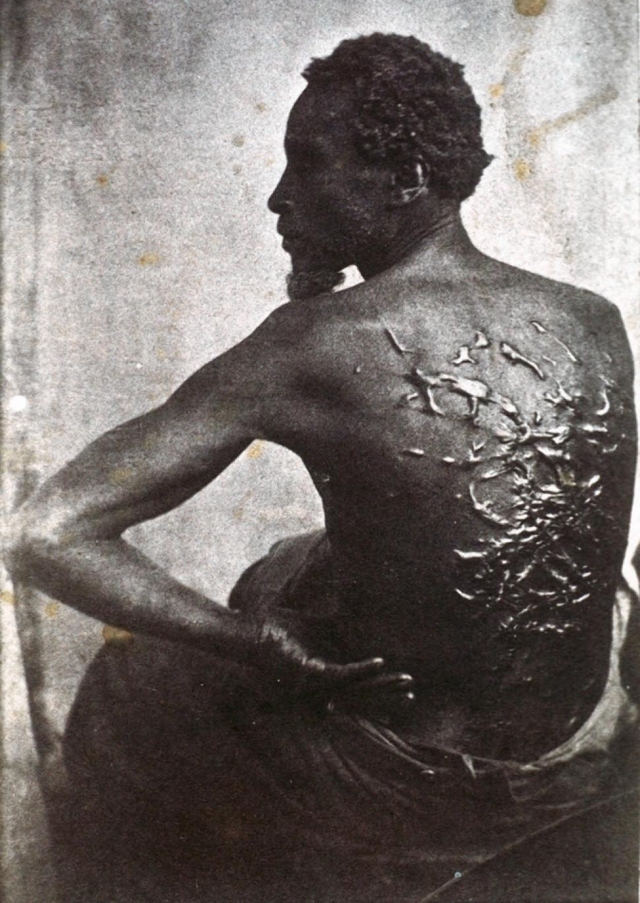 Scars from being whipped as a slave, circa 1863